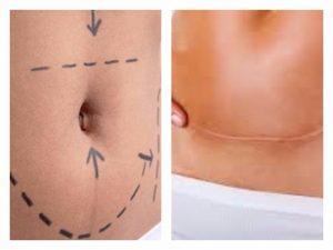 abdominoplastia puig2