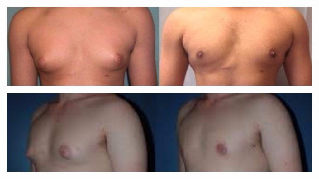 tratamiento con cirugía estética de la ginecomastia en la pubertad