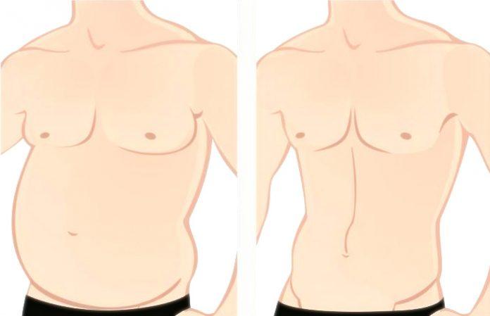 ginecomastia durante la pubertad por desequilibrios hormonales