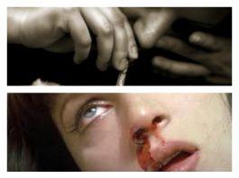Rinitis por coca: taponamiento, heridas y costras en la nariz