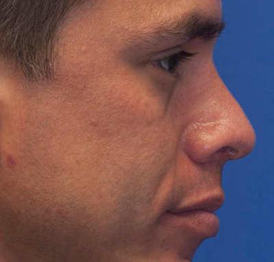 nariz respingada en hombre