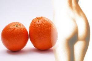 imagen de unas naranjas y un cuerpo femenino. Medicina estética para combatir la celulitis
