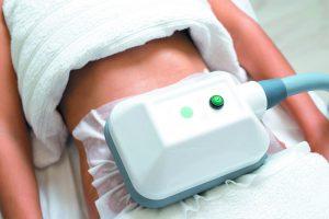 aparato de coolsculpting sobre un abdomen