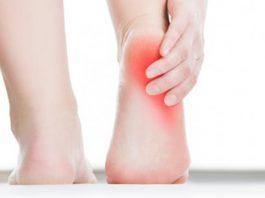 detalle de un talón coloreado representando algún tipo de dolor de talón.