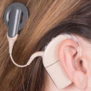 detalle de un implante auditivo coclear