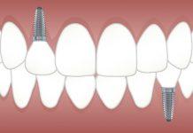 dibujo de unos implantes dentales. Implantes dentales en Valencia la mega guia.