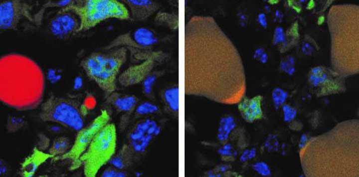 imágen de la conversión de células de cáncer en grasa