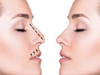 Explica a tu cirujano los objetivos que esperas de tu cirugía de nariz.
