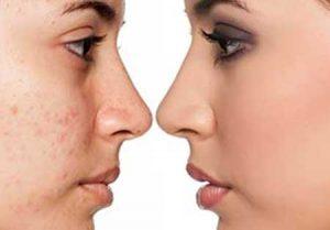 Elimina las cicatrices del acné con microneedling y prp